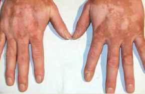 导致男性患上白癜风疾病的原因有哪些呢