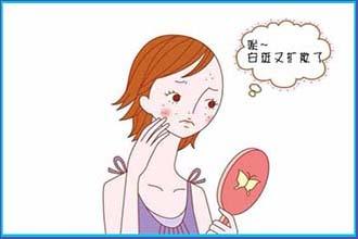 现在的青年人患白癜风的症状是什么